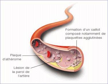maladie vasculaire